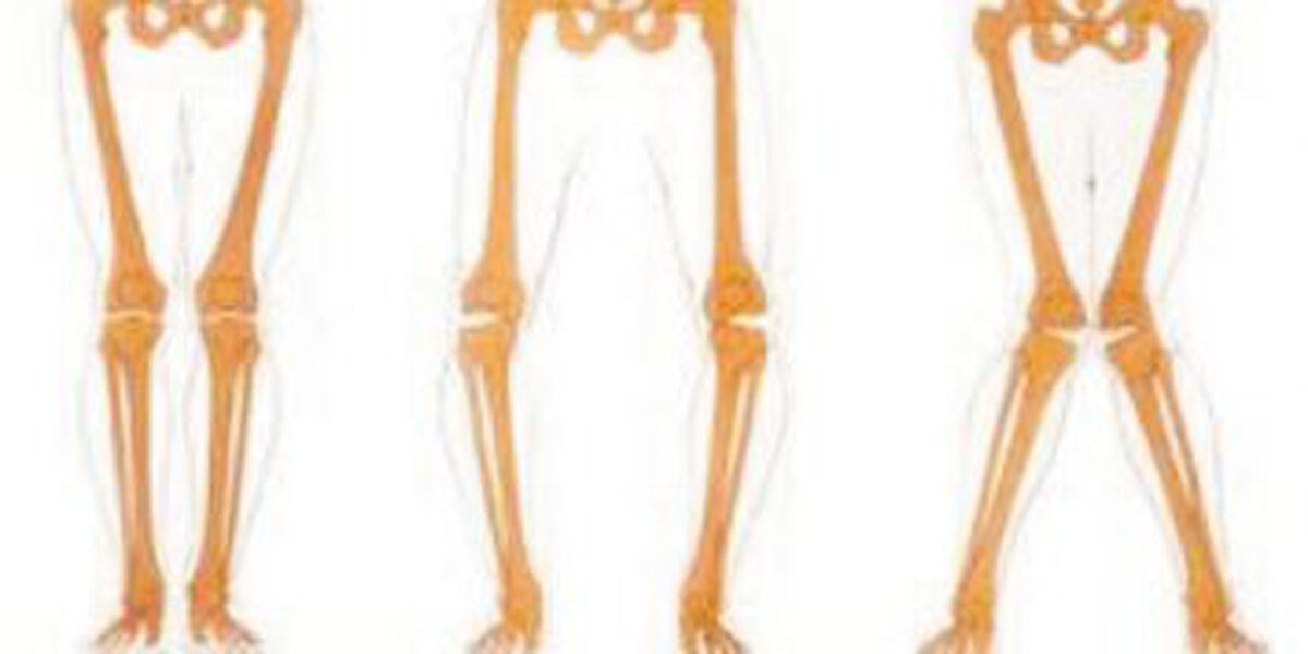 Lúdtalp, X láb, O láb, lábujjhegyen járás. Mit javasol az ortopéd orvos?